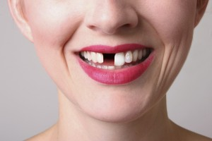 implantes dentales en Bilbao
